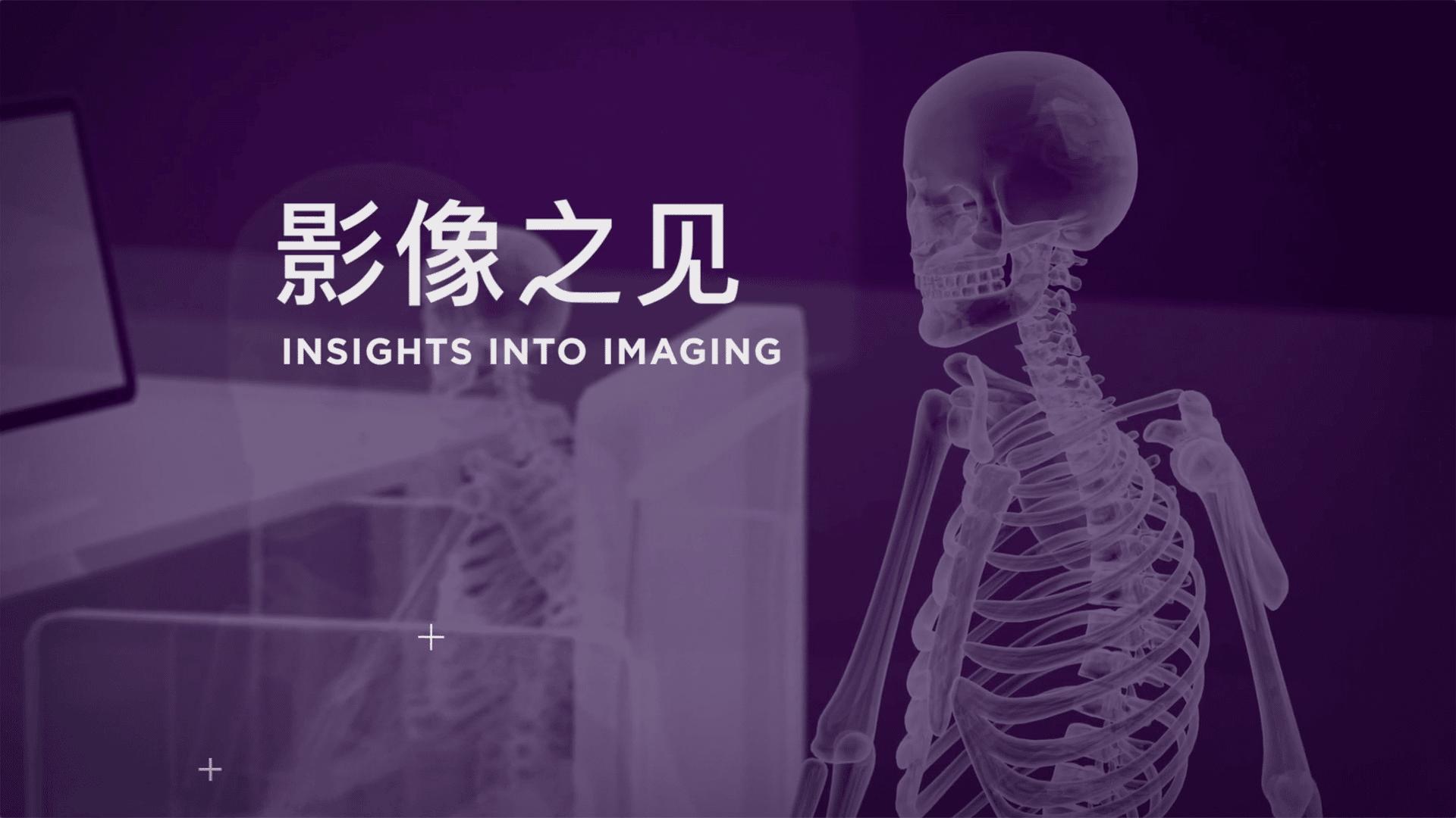 Insights Into Imaging Still Image